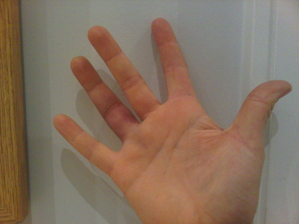 Dislocated Right Ring Finger