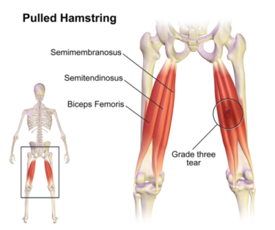 Hamstring Stretch Video [Guest blog by Dr. Smillie, DC]